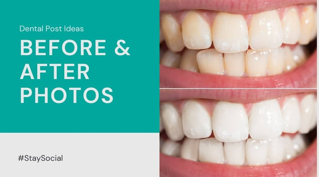 comparison of before and after a smile makeover